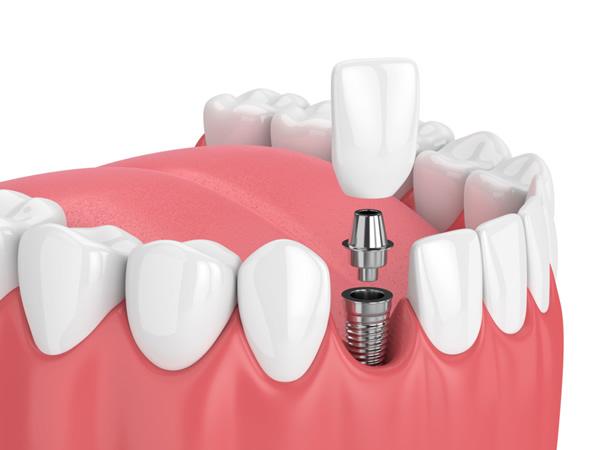 Dental Implant- Happy Smiles Dentist Hornsby