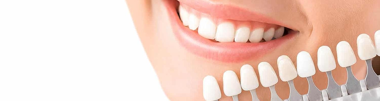 Teeth Whitening -Happy Smiles