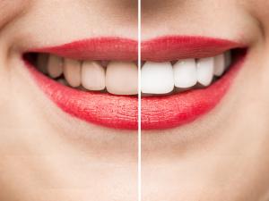 Hornsby Teeth Whitening