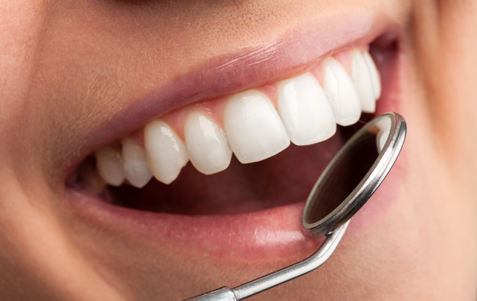 Dental Extractions Hornsby